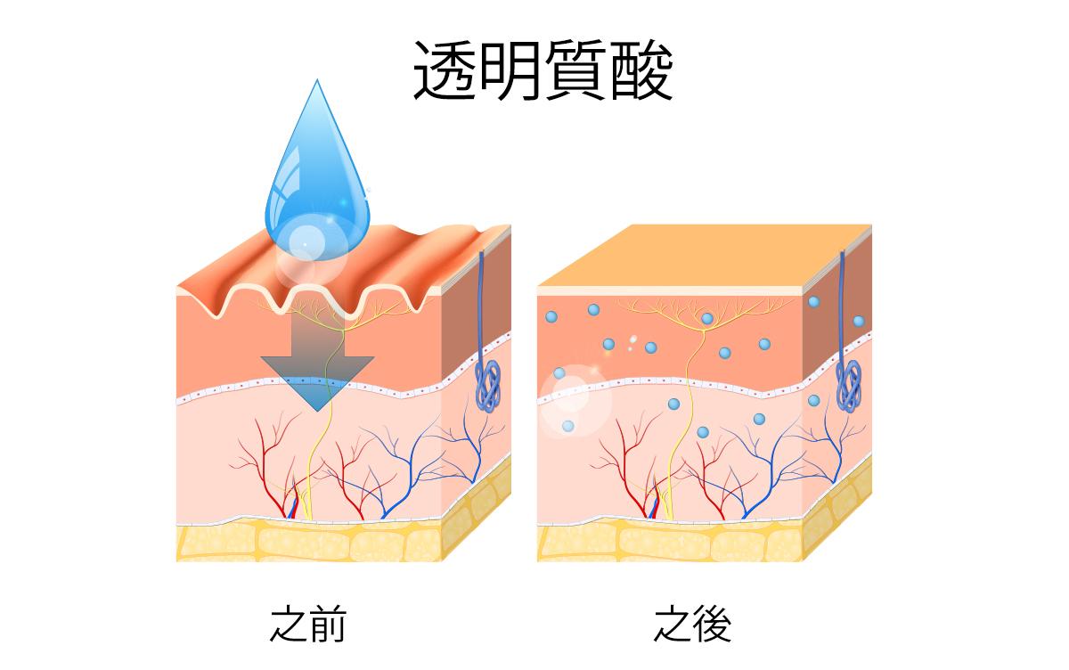 Hyaluronic Acid cantonese